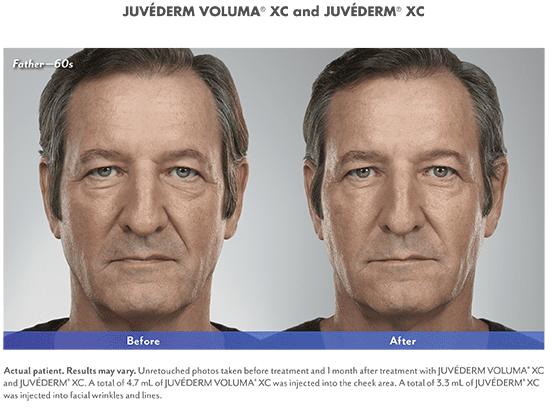 HydraFacial - St Petersburg, FL - Coundouriotis Facial